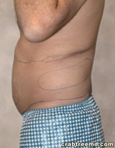 male love handles liposuction